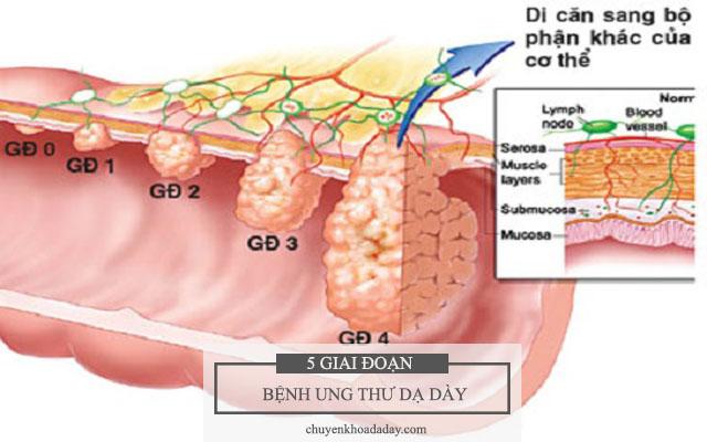5 giai đoạn của bệnh ung thư dạ dày