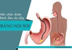 Nên dùng phương pháp nội soi để chẩn đoán bệnh đau dạ dày